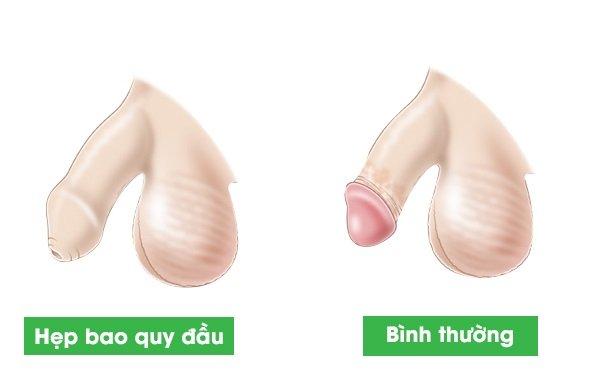 Trước và sau khi cắt bao quy đầu